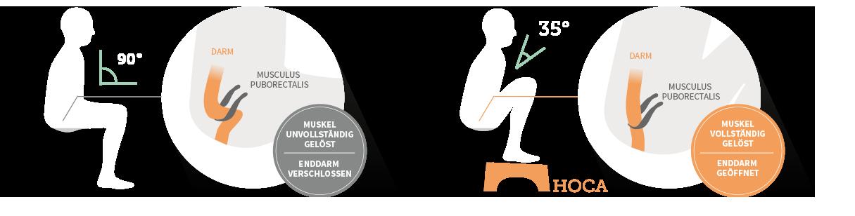 Hocken statt sitzen